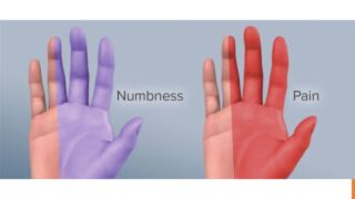 carpal tunnel pain and numbness in the hands